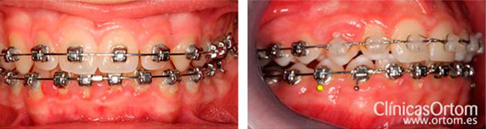 普通的牙齿矫正